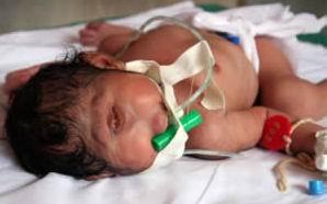 Bayi Cyclop